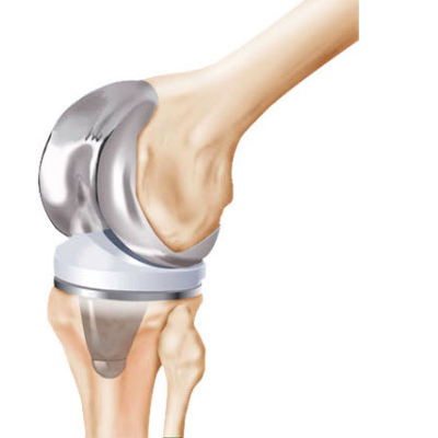 joint replacement the region